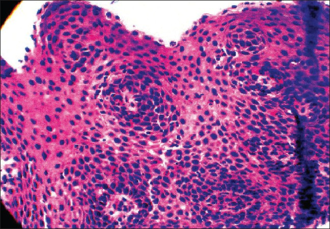 Figure 2: Esophageal squamous mucosa showing elongation of submucosal papillae, basal cell hyperplasia and prominent (>20/HPF) intraepithelial eosinophils. No dysplasia or malignancy is seen. No glandular epithelium is seen. No viral inclusions are identified. No yeast, fungi or other pathogenic organisms are seen