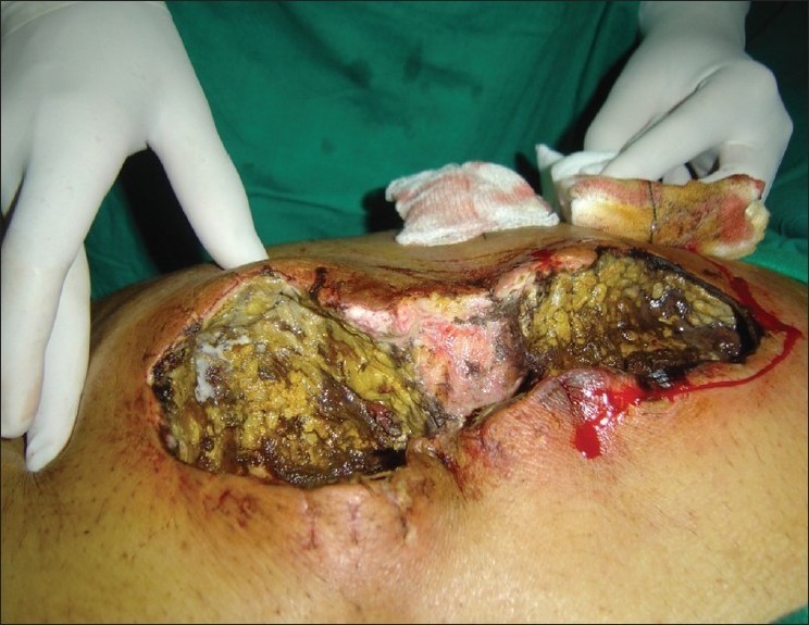 Figure 1: Intra operative picture showed black margins with surrounding erythema with extensive slough and white colony over bowels