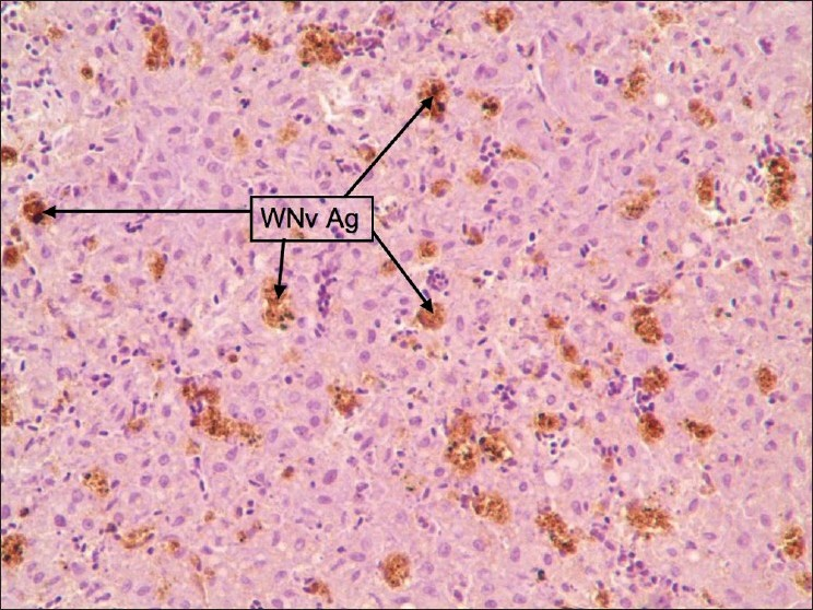 Figure 2: Liver: Staining was diffuse type and WNv antigen-stained cells were Kupffer cells