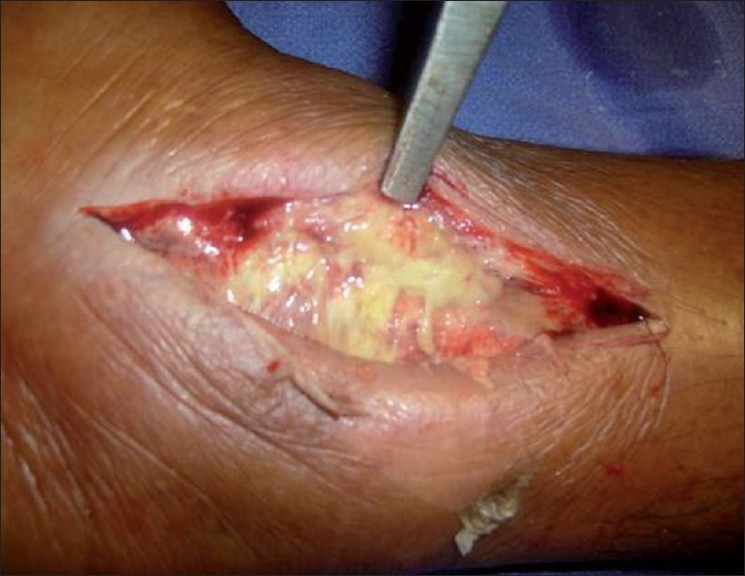 Figure 4: Pus drained from right ankle
