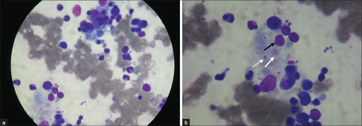 Figure 1: (a) Hemophagocytosis in the bone marrow of a 24-year-old girl with dengue virus-associated HLH (Leishman's staining technique). (b) The macrophage at the center of the image with engulfed red blood cells (white arrow), leukocytes (black arrow), and platelets (dotted arrow) [Original photomicrograph 100×; oil immersion].