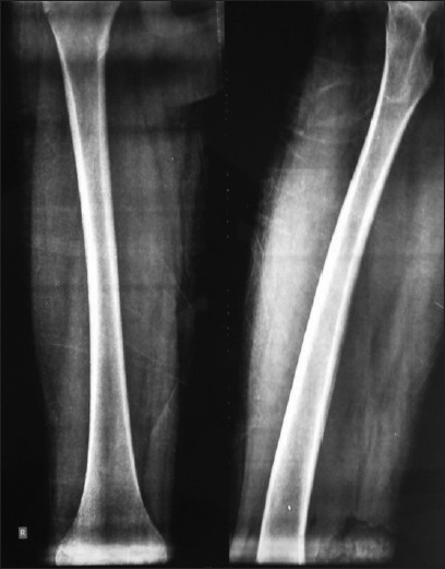 Figure 1: X-rays of the patient at presentation, showing grossly normal bony architecture