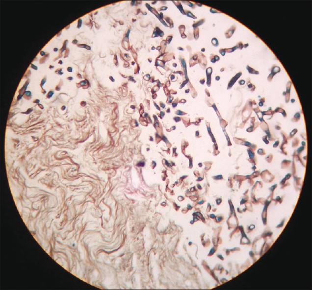 Figure 2: Photomicrograph showing broad aseptate, ribbon like hyphae of mucormycosis. (Grocott silver methanamine stain, ×400)