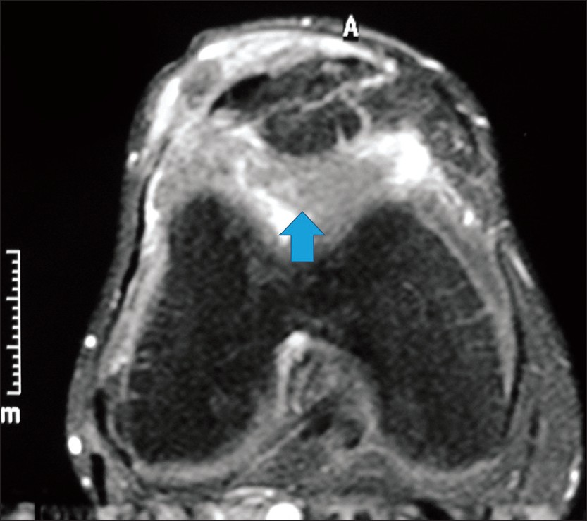 Figure 2: Axial MRI image, showing a solid fibrous mass in Hoffa's fat pad