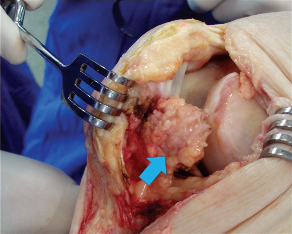Figure 3: Intraoperative aspect of the lesion in Hoffa's fat pad, with an intact patellar tendon