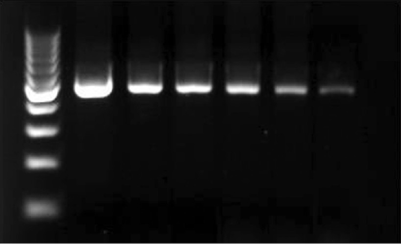 Figure 3: Agarose gel electrophoresis of serially diluted A. fumigatus conidia (106 to 101 CFU, corresponding to 10 ng to 100 fg of DNA) showing a single, specific band at 500 bp. Lanes: 1, 100- bp ladder; 2, 106 CFU ; 3, 105 CFU (1ng); 4, 104 CFU (100 pg); 5, 103 CFU (10 pg); 6, 102 CFU (1 pg); 7, 101 CFU (100 fg); 8, negative control (double-distilled H2O)