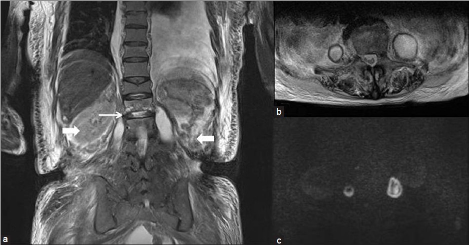 Figure 1: Magnetic resonance imaging shows bilateral iliopsoas abscesses (IPAs). (a) T2 weighted coronal image shows bilateral high-intensity lesions (→) within iliopsoas muscles with discitis (→). (b) T2 weighted axial image shows bilateral IPA. (c) Diffusion weighted image reveals the lesions as high intensity, which is consistent with IPA