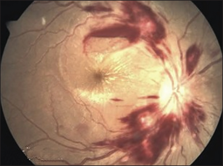 Think, that malarial retinopathy in bangladeshi adults