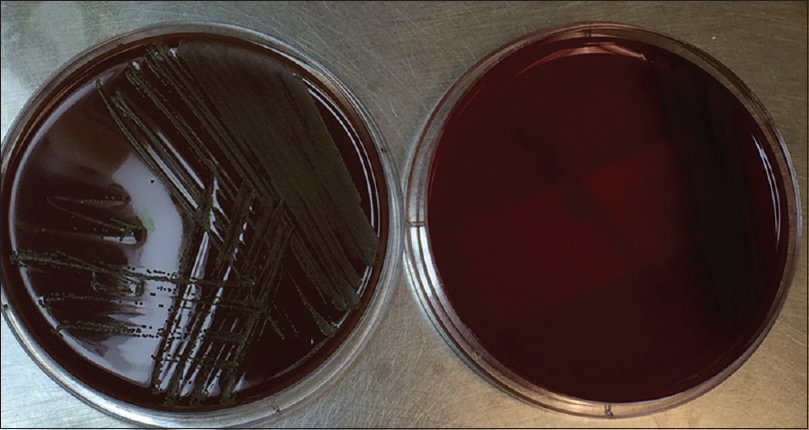 Figure 2: Growth of colonies of <i>Abiotrophia defectiva</i> in the chocolate agar plate (right side) compared to sparse grown in blood agar (left side) due to lack of nutrients such as pyridoxal phosphate