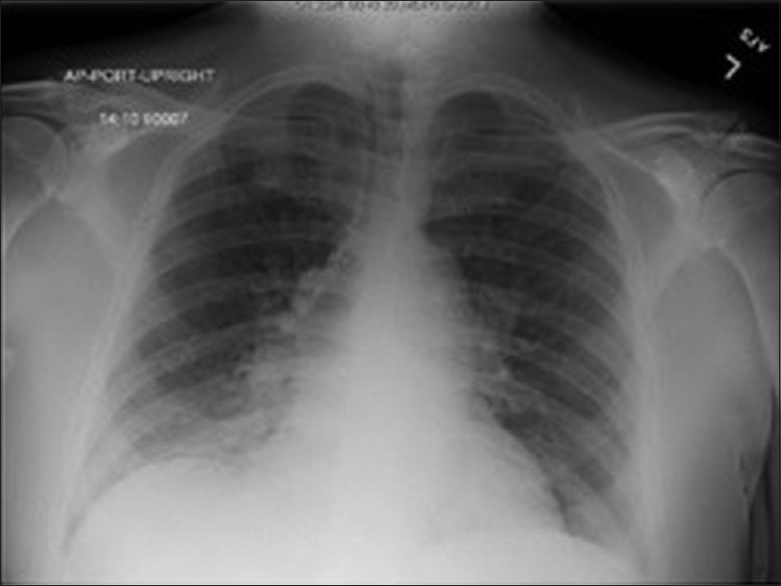 Figure 1: Chest X-ray, presentation