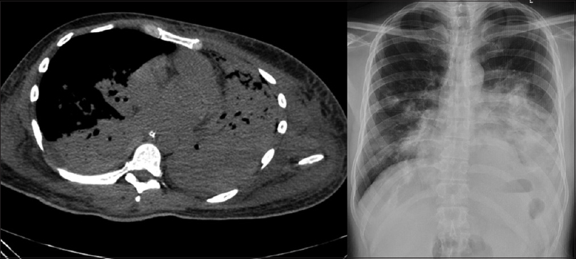 Figure 1: Computed tomography chest and X-ray images of the patient showing consolidation of the left lung with destruction of the left lung